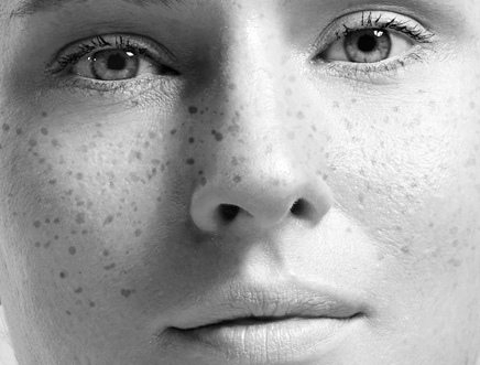 ephelides, freckles